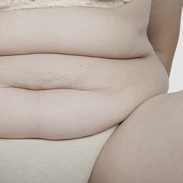 Middle-age fat problem